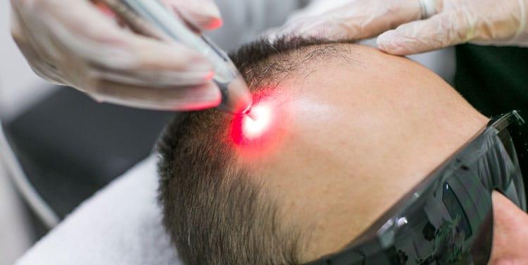 Terapia Capilar a Laser com Drug Delivery
