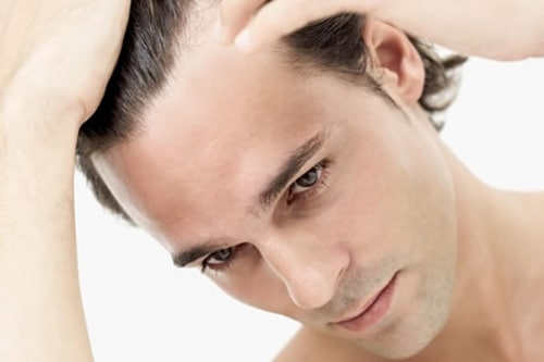 Tratamentos Capilares - calvice