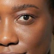 Pela concentração de melanina, a pele negra exige atenção específica