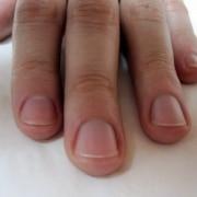 As unhas podem dizer muito sobre sua saúde, são o espelho de como anda seu organismo! Elas são estruturas compostas por queratina, uma proteína sintetizada por glândulas localizadas em suas bases. Além de fortes, as unhas devem ser flexíveis, brilhantes e lisas, ou seja, sem irregularidades em suas superfícies. As unhas das mãos crescem cerca de 1 mm a cada 10 dias e 3 vezes mais do que as unhas dos pés.
